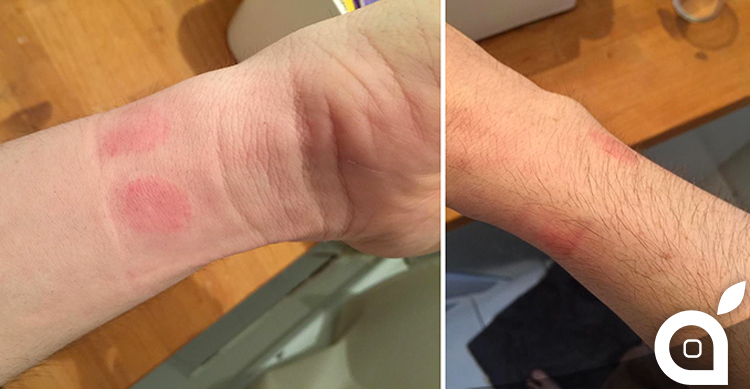 apple-watch-allergy