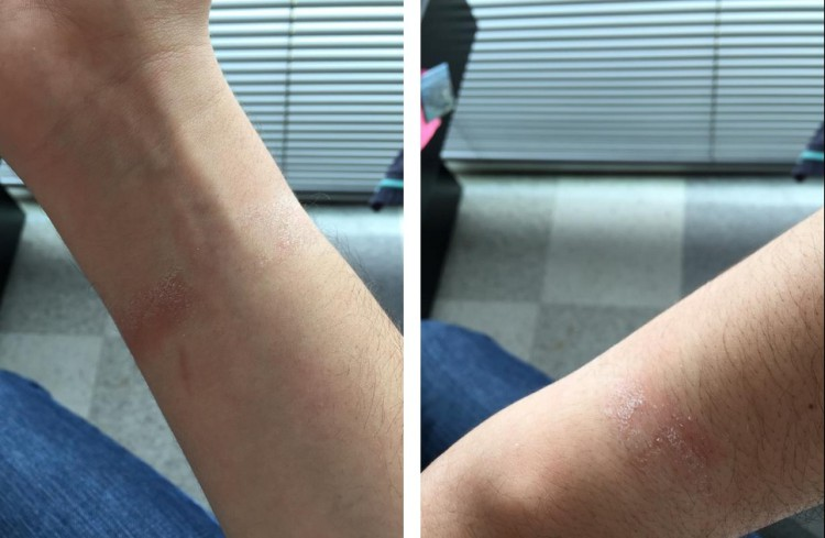 apple-watch-allergy2